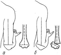 Признак маркса локтевом суставе дарсонвализация для суставов